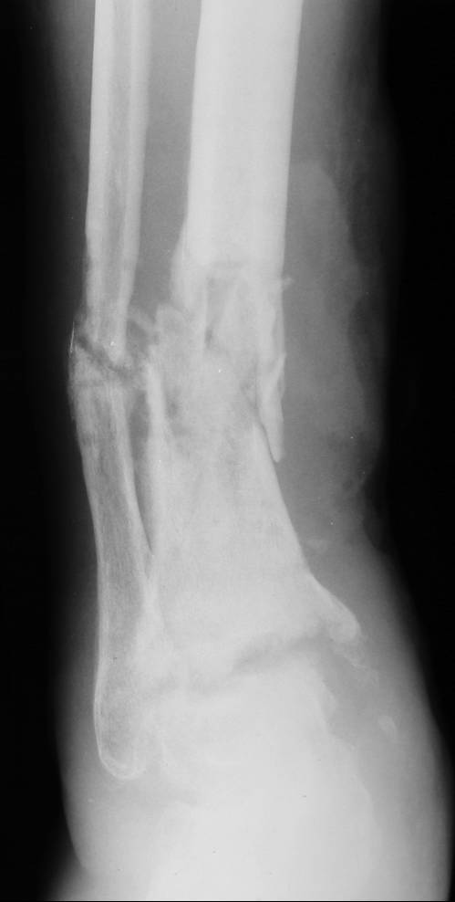 Infected Nonunion Tibia Case 2 Dr Mark Brinker